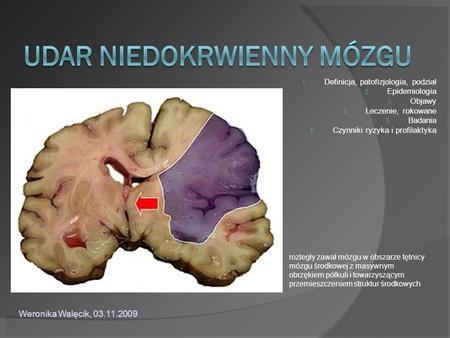 1. Definicja, patofizjologia, podział 2. Epidemiologia 3. Objawy 4. Leczenie, rokowane 5. Badania 6. Czynniki ryzyka i profilaktyka rozległy zawał mózgu.